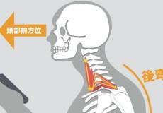 肩こり・首こりの原因『頭部前方位』